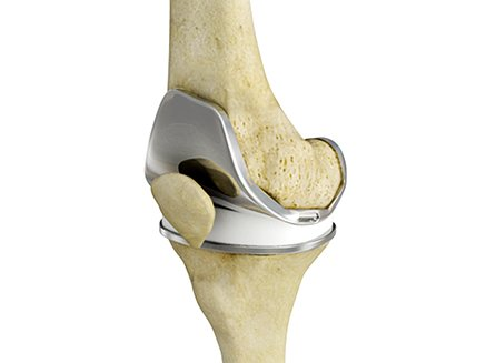 Rapid Recovery & Outpatient Joint Replacement